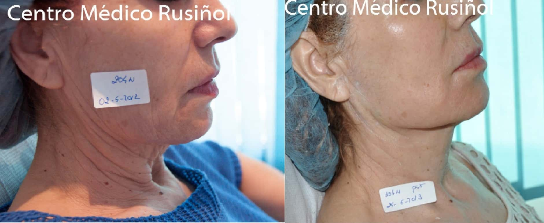 Lifting facial cuello 3s Antes y despues