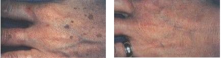 Mancha de edad eliminadas con láser CMR