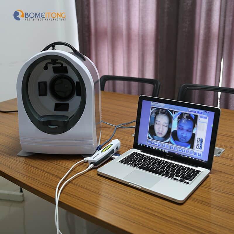 skin analyser para el diagnóstico
