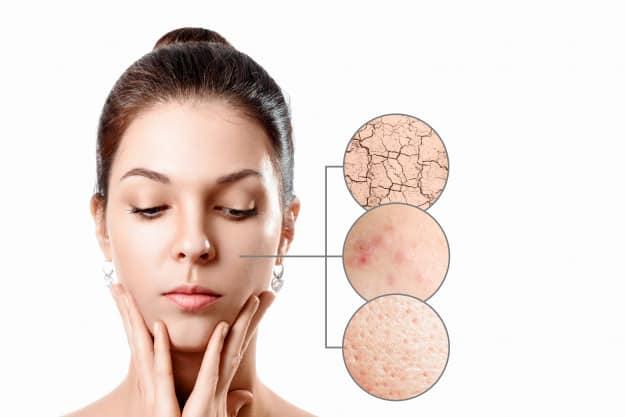 Así afecta el estrés a la salud de tu piel
