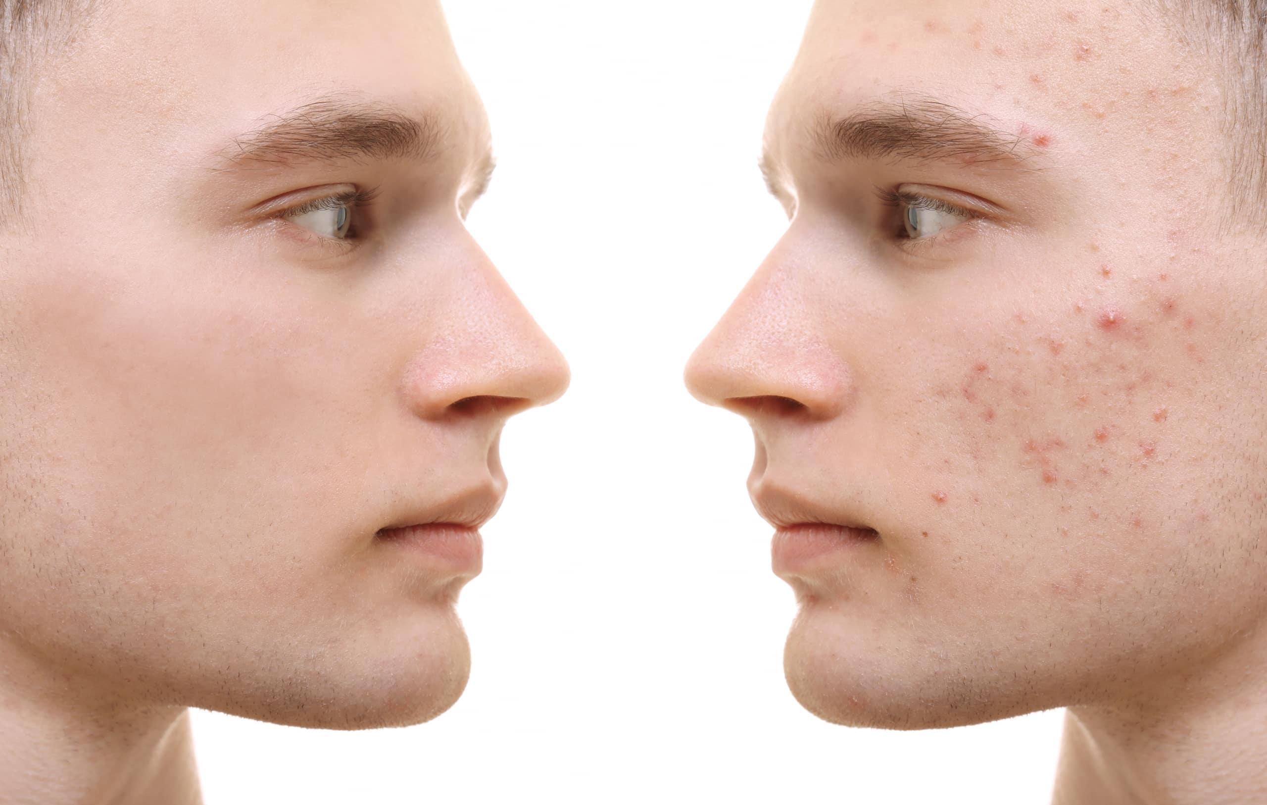 evitar la aparición del acné