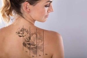 ¿Cómo borrar un tatuaje?