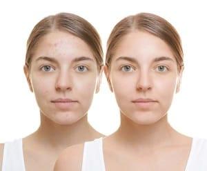 Cómo eliminar las cicatrices de acné