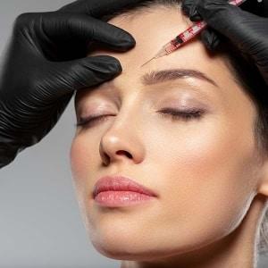 Botox en la frente