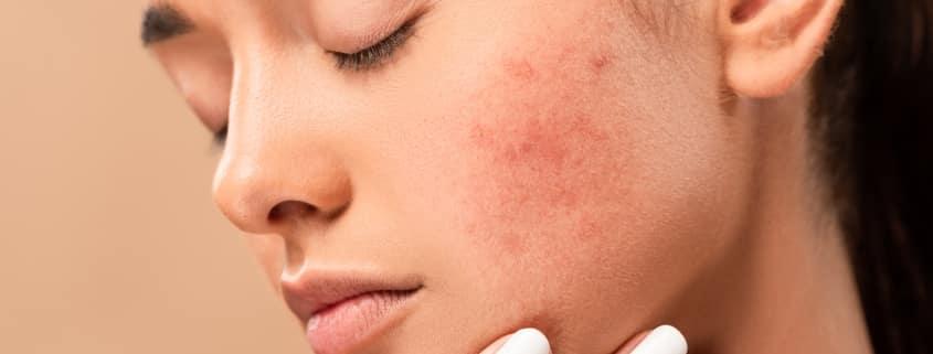 como eliminar cicatrices de acné